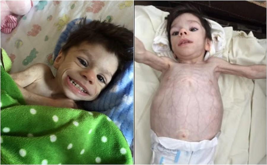 A 7 esztendős fiú csak 3,6 kg volt mikor örökbe fogadták: – nézd meg hogy néz ki egy év múlva