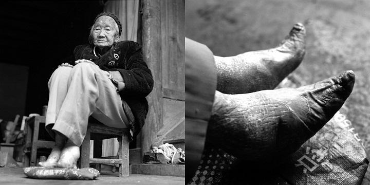 Fotósorozat készült az utolsó ötven megnyomorított lábú nőről, akik egykor a gazdagság és a szépség szimbólumai voltak.