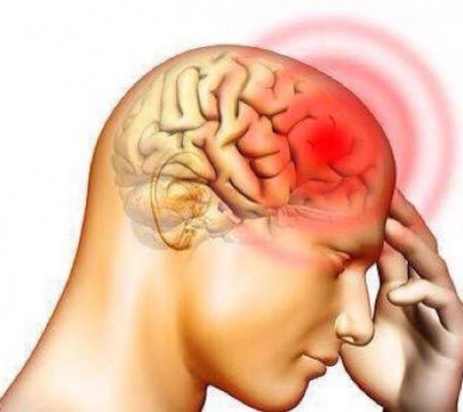 Fertőző agyhártyagyulladás!Figyelem !ÁNTSZ kiadta a közleményét !