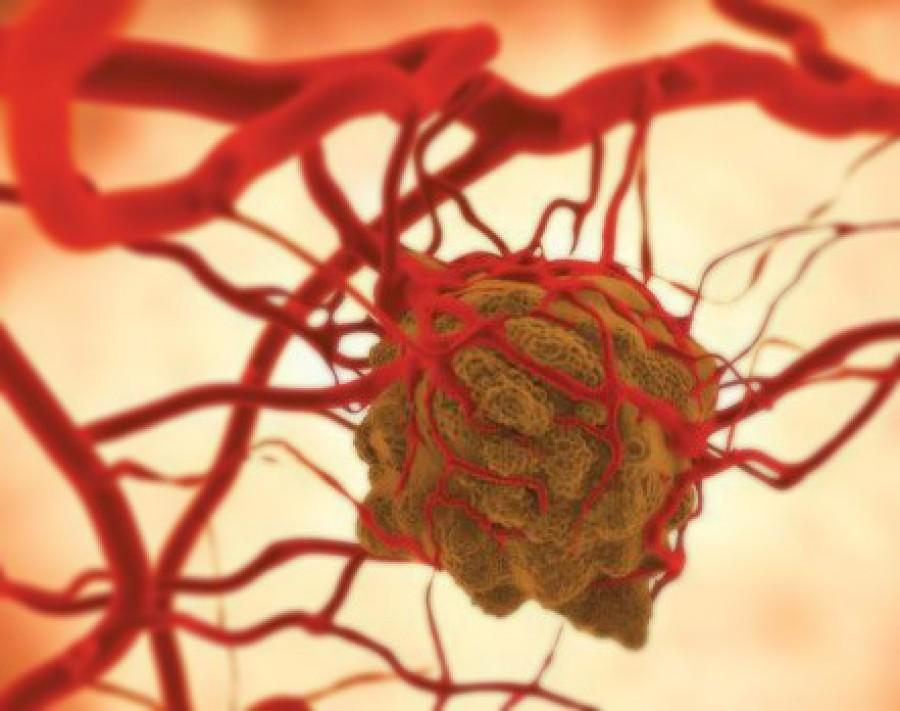 Ez a rák hét előjele, amit az emberek zöme sajnos nem vesz elég komolyan