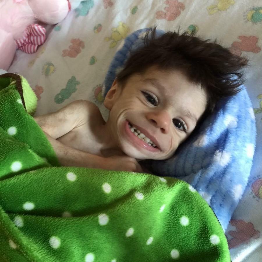 A 7 éves fiú mindössze 3,6 kg volt mikor kihozták az otthonból – nézd meg hogy néz ki egy év múlva
