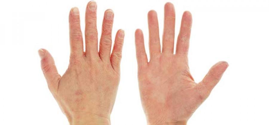 Fontos tudnod: a kezünkön is megjelenhetnek a gyilkos kór első tünetei!