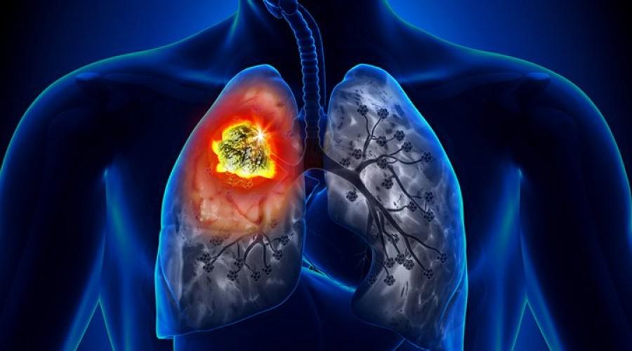 Édesanyám egy hónap alatt gyógyult meg a tüdőrákból. Naponta 4 kiskanállal éhgyomorra..