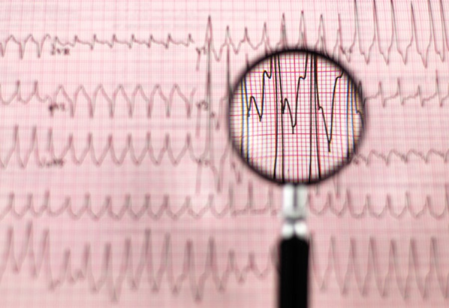 Olyan diagnózist állapítottak meg a 12 éves diáklánynál, hogy még az orvosok sem akarták elhinni