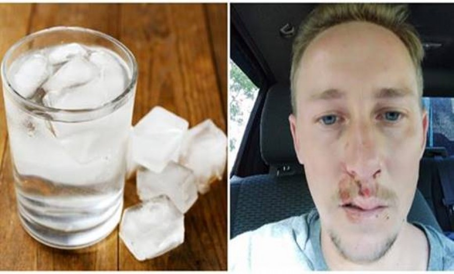 A férfi elvesztette az eszméletét víz ivása után, most mindenkit figyelmeztet miért ne igyunk jéghideg vizet ha nagyon meleg van!